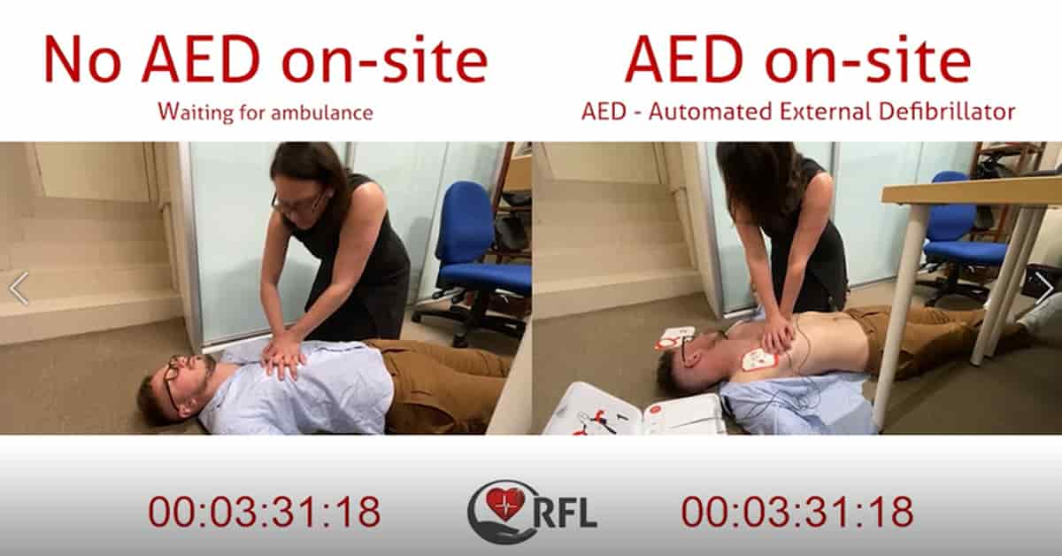 Rotary AED and no AED comparison